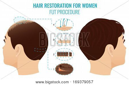 Female hair loss treatment with follicular unit transplantation. Stages of FUT procedure for women. Alopecia infographic medical template. Clinics and diagnostic centers design. Vector illustration.