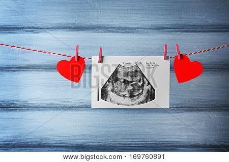 Ultrasound of baby hanging on rope