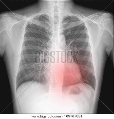 pneumothorax seen in chest radiography which want to intercostral drainage.The red dots pointing.