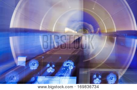 A zoom blur of an X-ray scanner and a image of brain on a monitor.