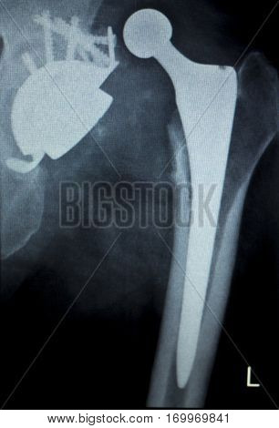 Hip Replacement Implant Xray Scan