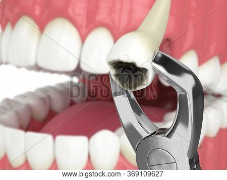 3d Render Of Dental Forceps With Extracted Tooth
