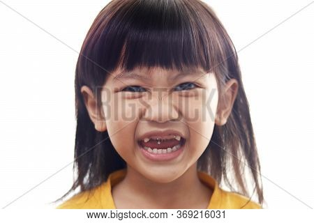 Asian Little Girl Showing Her Open Mouth Full Of Caries Teeth Decay. Dental Medicine And Healthcare.