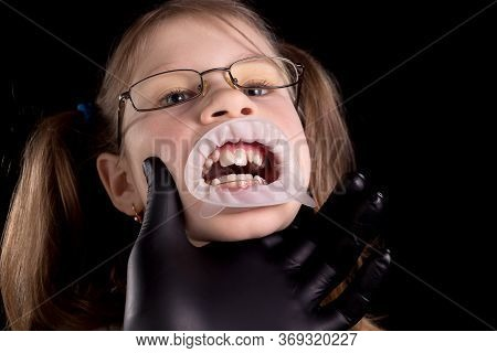 The Doctor Examines The Child's Teeth. A Child With Crooked Teeth. Studio Photo On A Black Backgroun