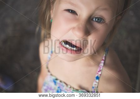 A Little Girl With Crooked Teeth Shows An Orthodontic Appliance In Her Mouth