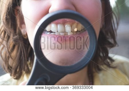 Woman With Magnifier Shows Her Crooked Teeth
