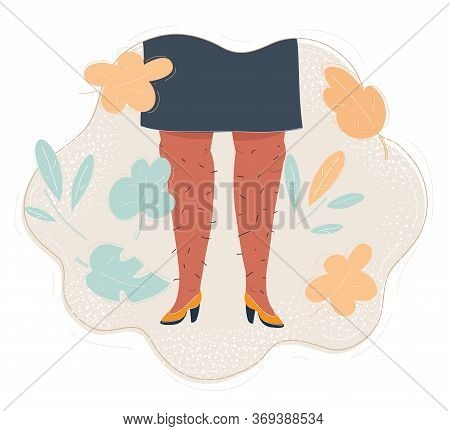 Illustration Of Woman With Hairy Legs. Bodyposetive Concept.