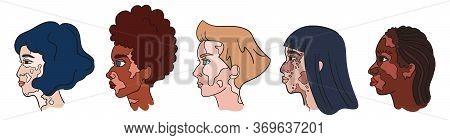 World Vitiligo Day. Women Faces With Pigment Spots. Isolated Portraits - Vector Vitiligo Set. Collec