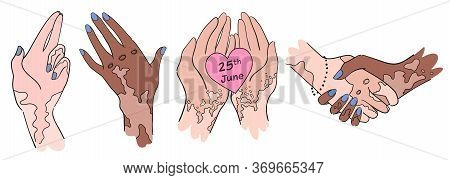 Hands For Vitiligo World Day - Isolated Vector Set. Women Hands With Pigment Spots. Gestures Of Hand