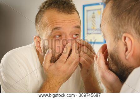 Adult Man Investigating His Wrinkles Or Pimples On Face. Guy After Waking Up Looking At Himself In M