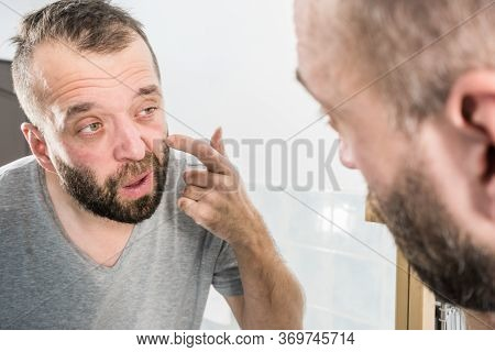 Adult Man Investigating His Wrinkles On Face. Guy After Waking Up Looking At Himself In Mirror. Agin