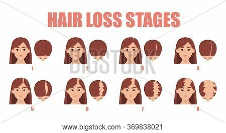 Hair Loss Stages Vector Isolated. Female Alopecia