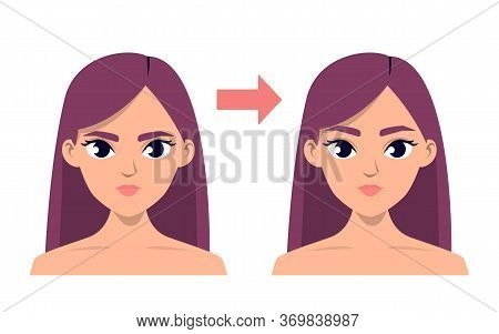 Brow Lift Surgery Before And After Vector Isolated