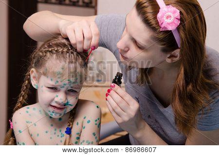 Mom Plaster Zelenkoj Child With Chickenpox Sores