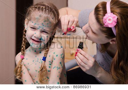 Mom Tries To Smear Zelenkoj Rash In Child With Chickenpox