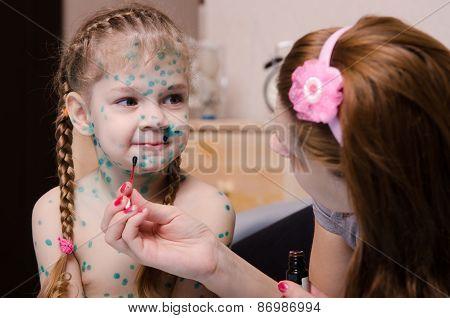 Mom Cauterize Zelenkoj Rash In A Child With Chickenpox