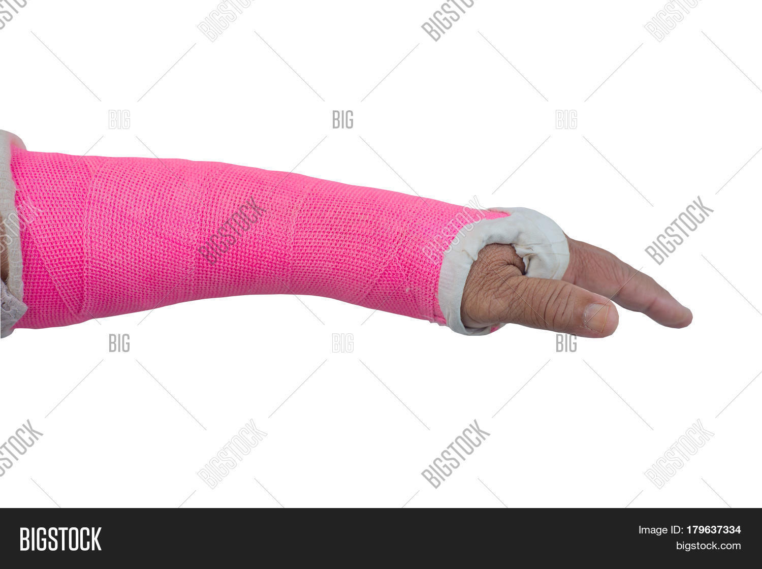 Arm Splint Be Plaster Image & Photo (Free Trial) | Bigstock