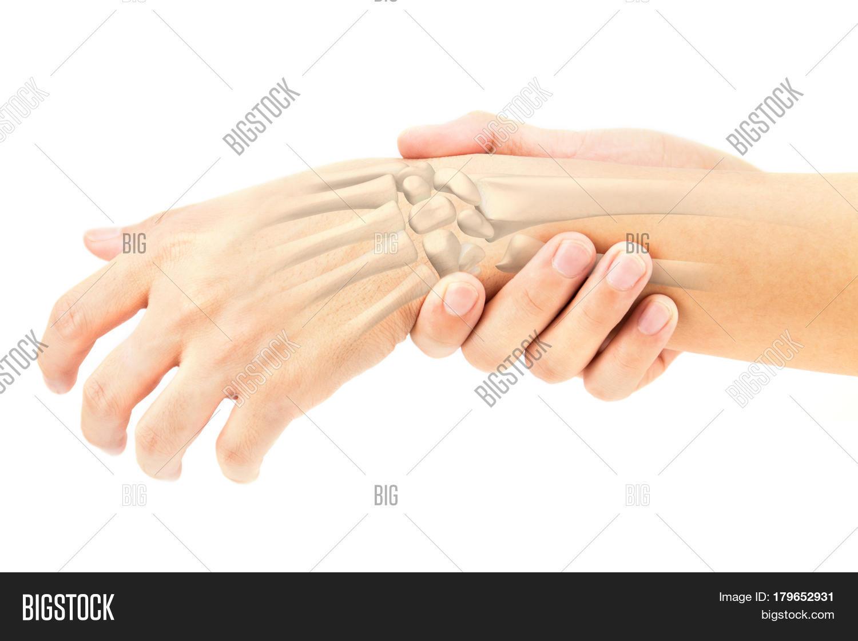 Wrist Bones Injury Image Photo Free Trial Bigstock