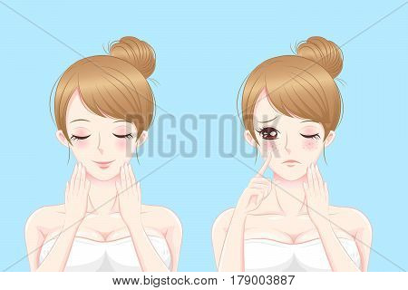 cartoon beauty woman with freckle problem on blue background
