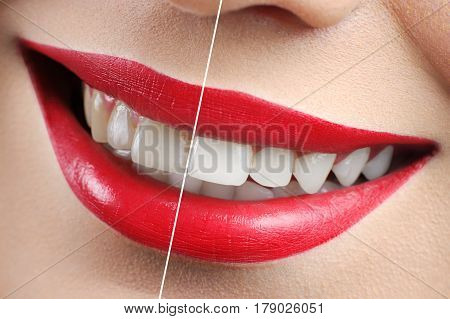 Perfect result Close up of beautiful red lipped woman smile before and after dental treatment whitening bleaching white perfect smiling health dental dentistry happiness lifestyle medical clinic .