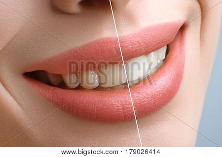 Teeth whitening. Close up shot of a smile of a beautiful woman before and after teeth whitening or bleaching procedure treatment teeth health healthy perfection smile vitality dentistry denture dental