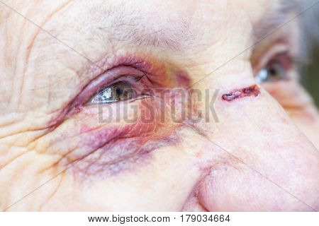 Close up picture of an elderly woman's injured eye & face - domestic violence