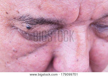 Mole On Eyelid Of Asian Man