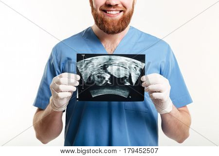 Cropped image of a smiling young male medical doctor or nurse showing radiograph x-ray image isolated on white background