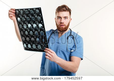 Portrait of a shocked young medical doctor holding CT scan and looking at camera isolated on white background