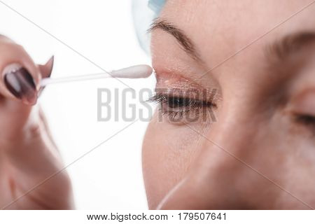 Blepharoplasty of the upper eyelid. An operation that removes the excess ugly skin of the eyelids above the eyes. The picture shows how the patient looks after the eyelid. The scar is lubricated with a special gel. One month after the operation.