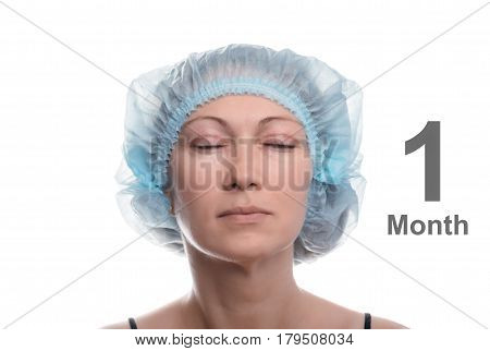 Blepharoplasty of the upper eyelid. An operation that removes the excess ugly skin of the eyelids above the eyes. The eyes are closed. Photos are taken at different times to track the healing process of the skin. One month after the operation.