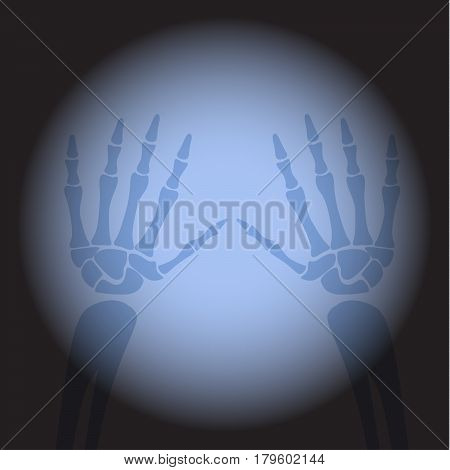 X ray hands. Human skeleton's part on black background.
