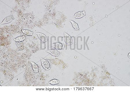 Living Vorticella is a genus of protozoan under microscop view.