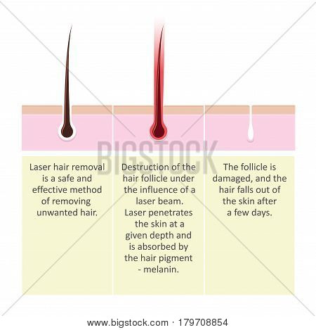 Scheme of laser hair removal. Stepup Description of the cosmetology procedure.