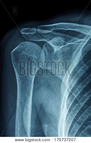 X-ray film of primary frozen shoulder or adhesive capsulitis of Asian female patient