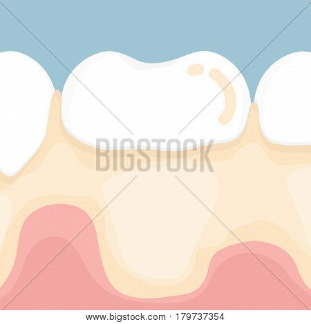 Dental plaque , vector cartoon design for dental