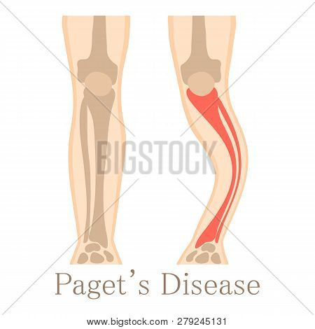 Paget Disease Icon. Cartoon Illustration Of Paget Disease Icon For Web Isolated On White Background