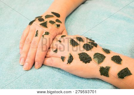 Skin Beriberi, Allergic Reactions, The Appearance Of Crusts On The Skin Reaction To The Phenomenon O