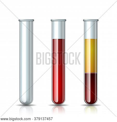 Set Of Glassware Tube Empty, Filled Blood And Fractioned Blood In Vitro, Plasma And Layers Red Blood
