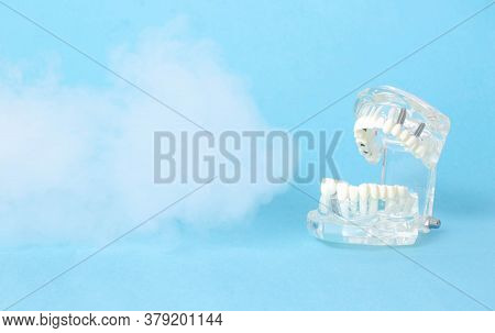 Dental Jaw Model On A Blue Background With Ozone. The Concept Of Dental Treatment With Ozone Therapy