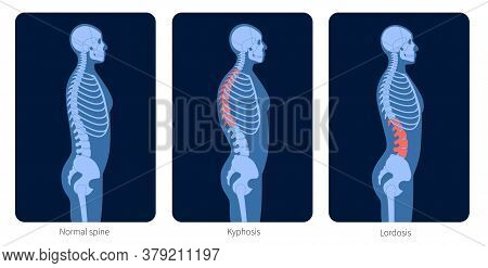 Normal Spine, Lordosis And Kyphosis. Scoliosis In Male Body. Xray Flat Vector Illustration. Backbone