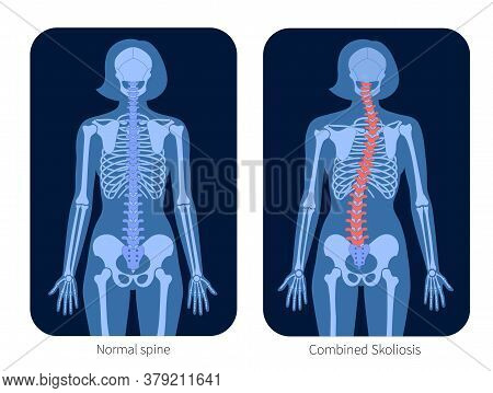 Normal Spine And Combined Scoliosis In Woman Body. Xray Flat Vector Illustration. Backbone And Skele