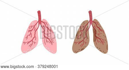 Healthy Lungs And Lungs Affected By Illness Or Smoking Or Vaping. Vector Illustration.