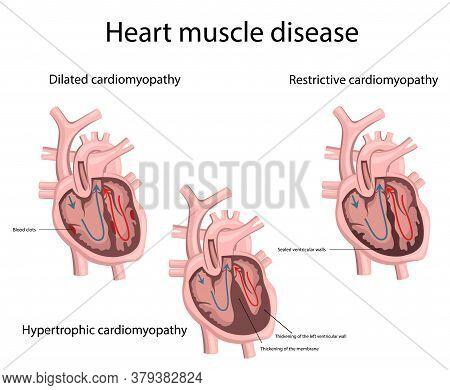 Vector Illustration Of Heart Muscle Disease. Medicine.