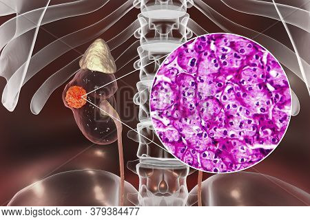 Kidney Cancer, Renal Cell Carcinoma, 3d Illustration And Light Micrograph