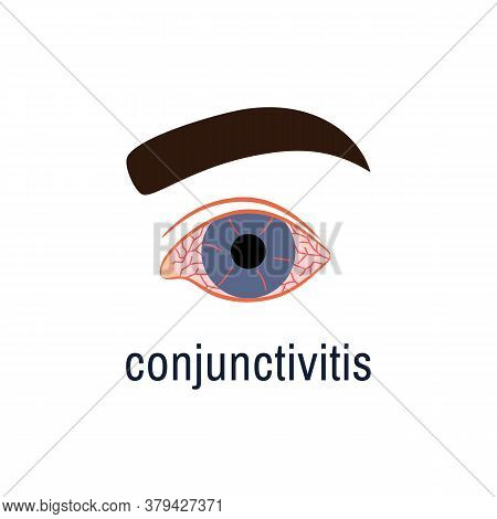 Conjunctivitis Icon Isolated On White Background. Watery Red Eye Logo. Viral Infection Season Allerg