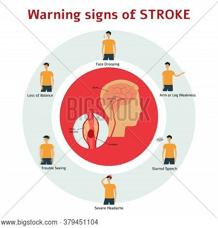 Stroke Warning Signs - Flat Cartoon Infographic Of Man Showing Symptoms Of Medical Health Issue