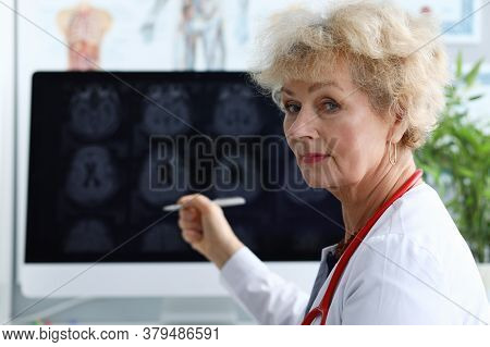 An Elderly Woman In A White Coat Shows A Pen On An X-ray. The Attending Physician Looks At The Mri O