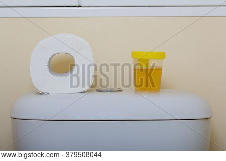 Urine In A Container For Analysis. Stands On The Toilet Cistern. Nearby Is A Roll Of Toilet Paper. D