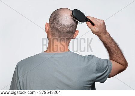 A Man Combs His Bald Head. Rear View. The Concept Of Baldness And Male Alopecia